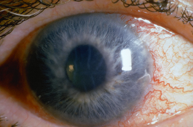 Eye of Patient with Acute Glaucoma