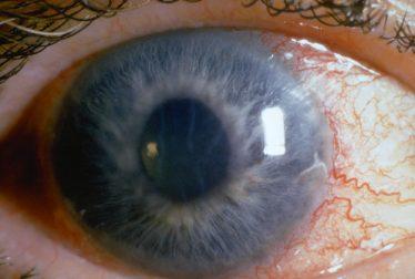 Tus ojos y el glaucoma preguntas frecuentes
