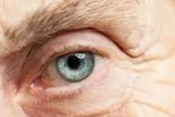 Cataratas: parte natural del envejecimiento